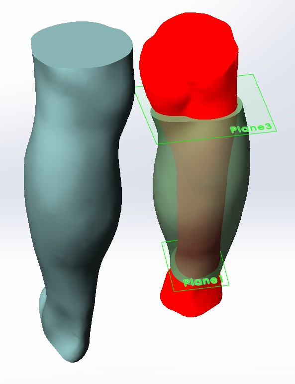 3D Scanned Prosthetic