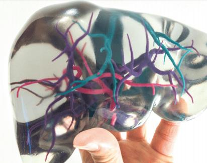 Stratasys 3D Printed Model Showing Blood Flow-1
