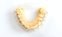 Dental Materials Braces