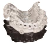 3D Printed Dental Implant