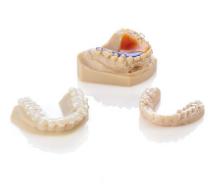 3D Printed Orthodontics Group Aligner
