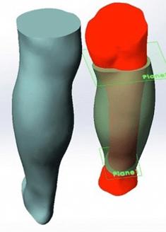 Artec 3D Scanned Prosthesis